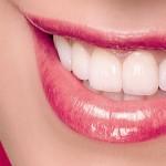 Final e.max SMILE