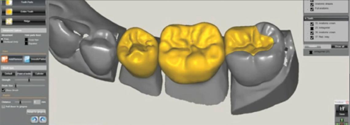 prototipo-protese-dentaria